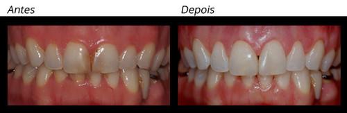 Restaurações 2 - WHITE Dental Team